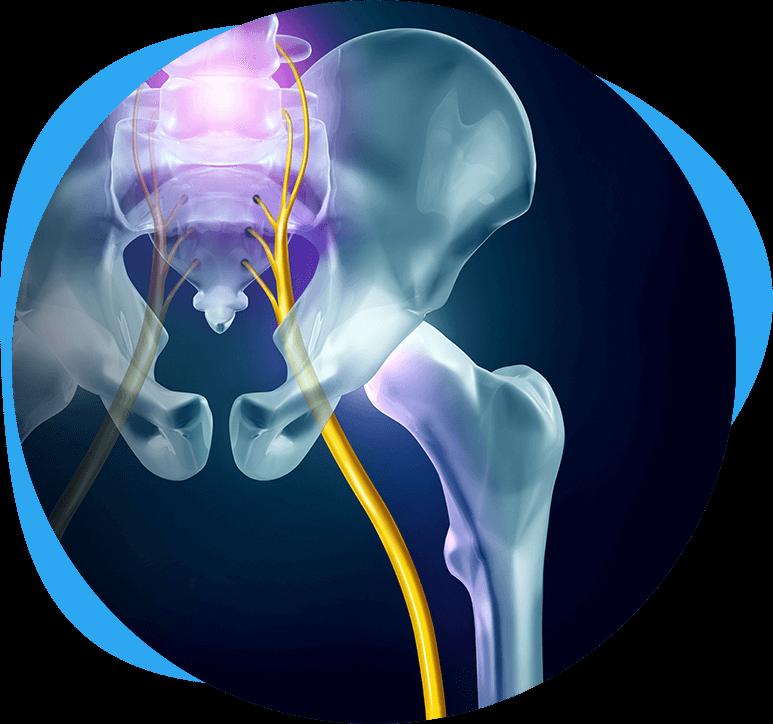 Chiropractic-Care-for-Sciatica-in-Glendale-AZ